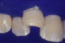 Caso 11 - Clearfil Majesty Esthetic-2