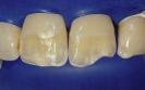 Caso 1 Gradia (laboratorio)-2