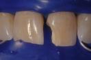 Caso 6 Gradia (laboratorio)-3