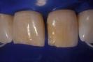 Caso 6 Gradia (laboratorio)-4