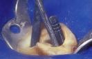 Caso 2 - Fibra-2